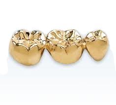 VERMILLION ENTERPRISES - BUY GOLD ONLINE - we buy scrap gold jewelry, broken gold, unwanted gold, no longer worn gold, necklaces, chains, earrings, bracelets, dental gold, class rings, gold wedding bands, gold bridal sets, platinum bridal sets, silver jewelry, scrap gold - sell yours at spring hill gold and coin shop - vermillion enterprises - 5324 spring hill drive, spring Hill Fl 34606 - 352-585-9772